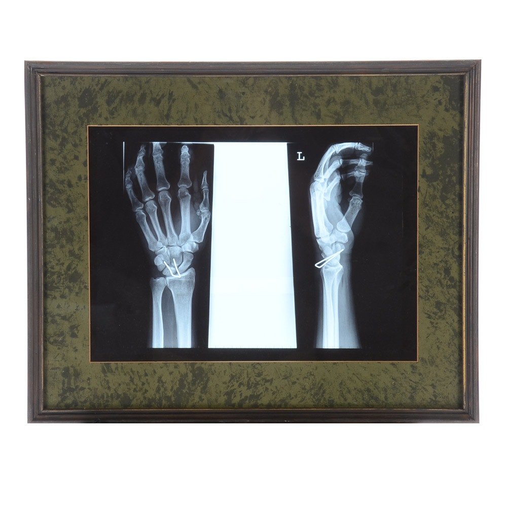 Framed X-Ray Print of a Wrist with an Industrial Staple