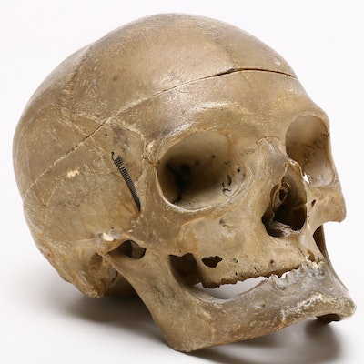 Authentic Human Skull Specimen